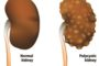What is Polycystic Kidney Disease?