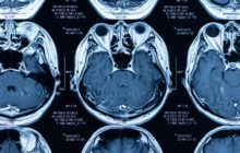 Will they ever wake up? New study on consciousness after brain injury shows 'maybe'